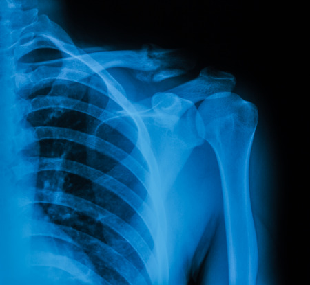 x-ray image of broken clavicle , AP view
