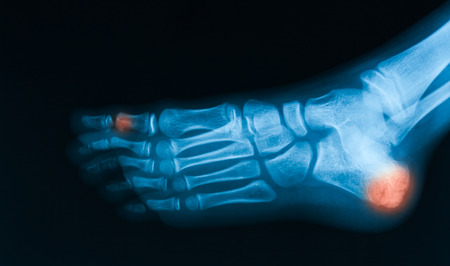 extremity: X-ray image of broken foot, AP and obliqe view, show frackture of calcaneus and toe Stock Photo