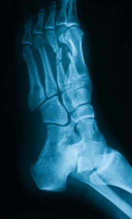 extremity: X-ray image of broken foot, obliqe view Stock Photo