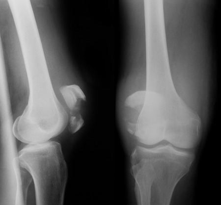 X-ray image of knee joint, AP and lateral view. photo