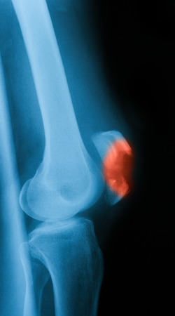 knee cap: X-ray image of knee joint, lateral view.