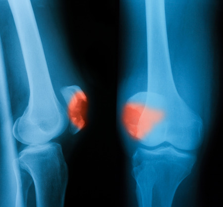 X-ray image of knee joint, AP and lateral view. Stock Photo