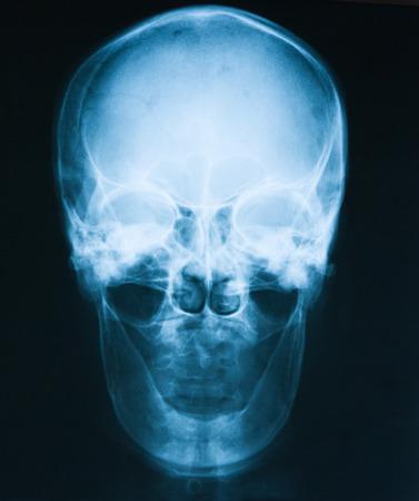 parietal: Skull x-ray image of a man losing his teeth, AP view. Stock Photo