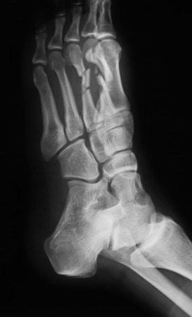 X-Ray image of foot, AP oblique view. photo