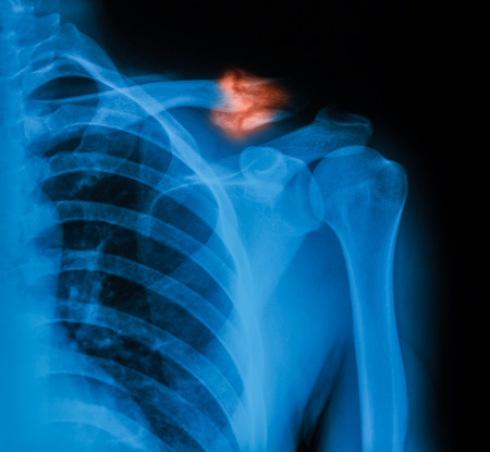 clavicle: X-ray image of broken clavicle, AP view