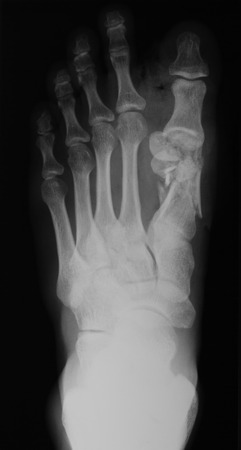 extremity: X-ray image of foot, AP view , show toe fracture. Stock Photo
