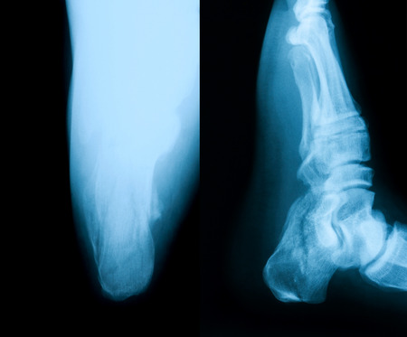 axial: X-ray image of broken calcaneus, lateral and axial view Stock Photo