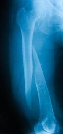 femur: X-ray image of broken femur, AP view. Stock Photo