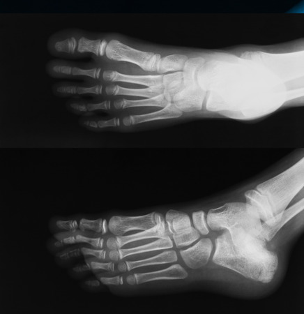 X-ray image of foot, AP and oblique view, show toe and calcaneus fracture. photo