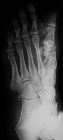 X-ray image of foot, oblique view , show toe fracture. photo