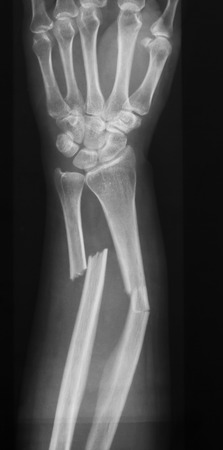 radius ulna: X-ray image of broken forearm, AP view, show fracture of ulna and radius