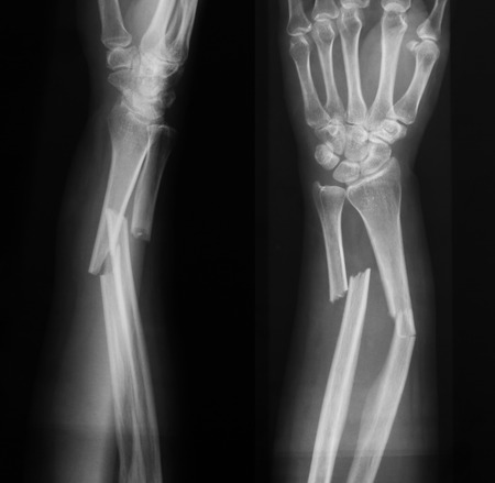 radius ulna: X-ray image of broken forearm, AP and lateral view, show fracture of ulna and radius