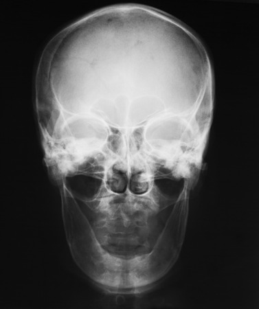 X-ray image of skull, AP view, a man loss of teeth. Banco de Imagens