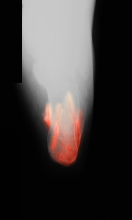axial: X-ray image of broken heel, axial view.