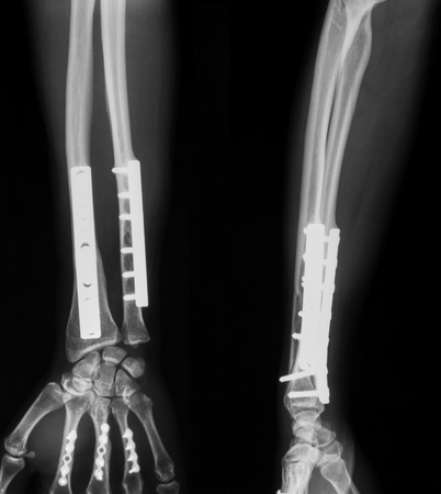 fractures: X-ray image of forearm, AP and lateral view, show ulnar and radius fractures after treating by screws