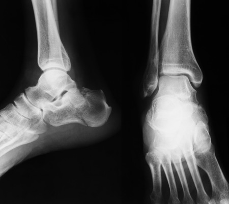 X-ray image of ankle joint , AP and lateral view. show ankle fracture.