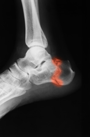 cuboid: X-ray image of ankle joint , lateral view. show ankle fracture.
