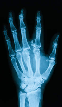 extremity: Xray image of hand PA veiw. Shows metacarpal fracture. Stock Photo