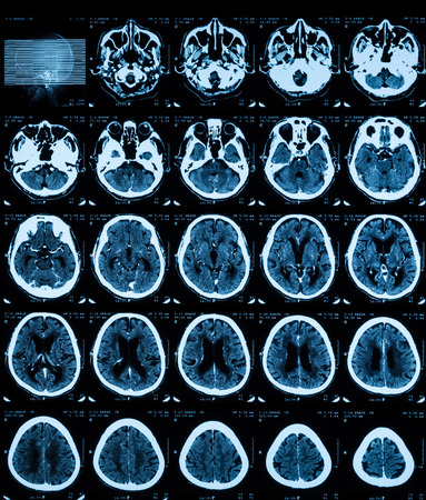 Ct scan of the brain with contrast midia.