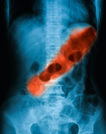 descending colon: Xray image of plan abdomen supine position. shows gastric ulcer. Stock Photo
