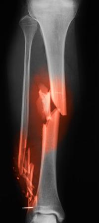 jambe cass�e: Radiographie de la jambe cass�e. Vue AP