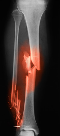 X-ray image of broken leg. AP view