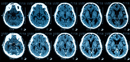 CT scan of the brain comparison between with and without contrast media.