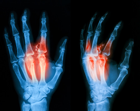 extremity: Xray image of broken hand PA and oblique view. Stock Photo