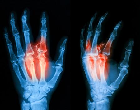 Xray l'image de la main cassé PA et vue oblique. Banque d'images - 40867973