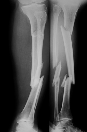 extremity: X-ray image of tibia and fibula fracture. AP and lateral view.