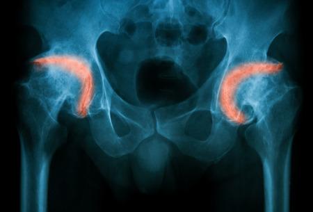 artrosis: Imagen de rayos X de ambas caderas, AP, muestra la osteoartritis artritis degenerativa de la cadera