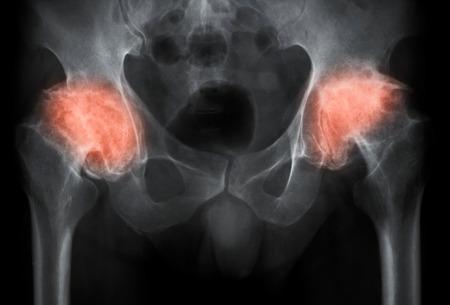 artrosis: Tanto la imagen de rayos X de la cadera, proyección AP, muestra la osteoartritis de la cadera con la pérdida de cartílago