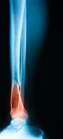 extremity: Broken leg x-ray image, lateral view, Showing tibia fracture.