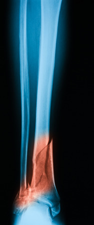 tibia: Broken leg x-ray image, AP view, Showing tibia fracture.