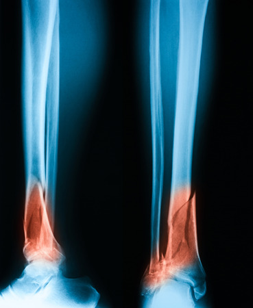 tibia: X-ray image of leg, AP and lateral view, Showing tibia and fibula fracture