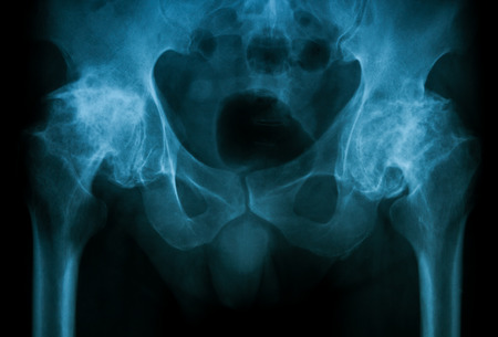 artrosis: Imagen Radiografía de ambos vista cadera AP mostrando caderas osteoartritis. Foto de archivo