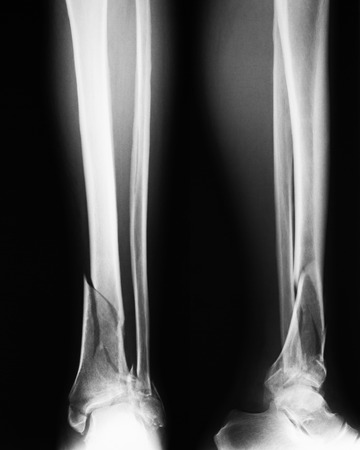 fractures: Broken leg xray image AP and lateral view. Showing tibia and fibula fractures.