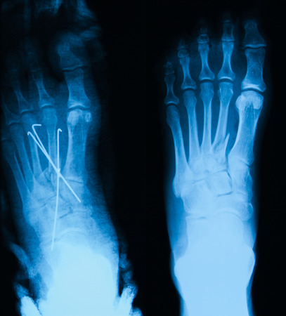 plaster cast: X-ray image of the second metataral fracture, AP view, before and after fixing with metal pins and plaster cast.
