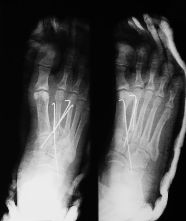 plaster cast: X-ray image of foot, AP and oblique view, showing the second metatarsal fracture after fixing with metal pins and plaster cast.