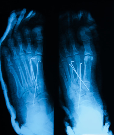 X-ray image of foot, AP and oblique view, showing the second metatarsal fracture after fixing with metal pins and plaster cast.
