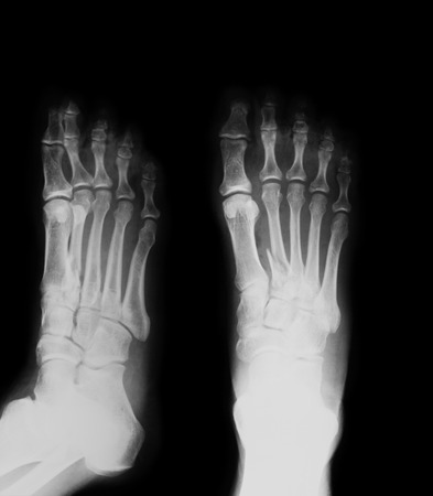 X-ray image of the second metatarsal fracture, AP and oblique view, Showing ulna fracture. Banco de Imagens