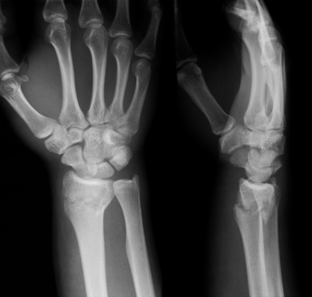 X-ray image of wrist joint, PA and lateral view, Showing ulna fracture.