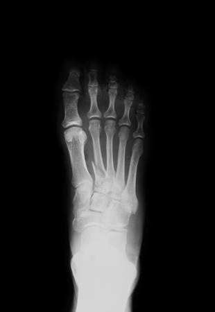 X-ray image of foot-the first matatarsal fracture, AP view, Shows the second matatarsal fracture. Banco de Imagens