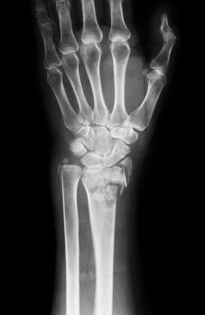 Xray image of wrist joint, PA view, Shows ulna fracture