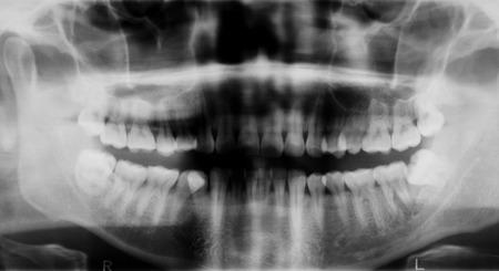 dental examination: Panoramic dental X-Ray Stock Photo