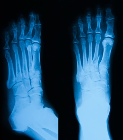 X-ray image of foot fracture, AP and oblique view
