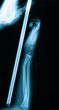 splint: Imagen de la radiografía del antebrazo bebé con férula de madera de han de la madre dholding