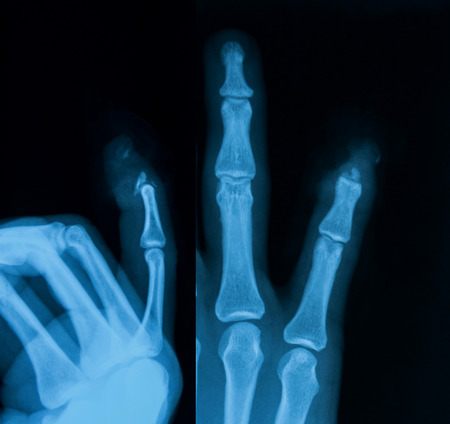 X-ray image of fingers, AP and lateral view, show the little finger fracture. Banco de Imagens