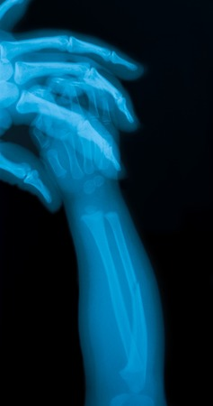 X-ray image of a baby forearm with mothers hand.