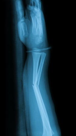 X-ray image of fracture forearm with wooden splint.
